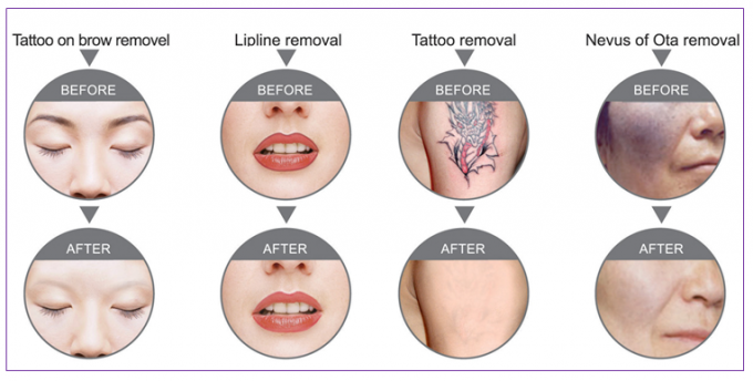 Portable Q - Switched Tattoo Laser Removal Equipment With Adjustable Treatment Probes