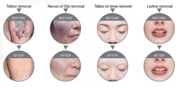Q Switch ND YAG Tattoo Removal Laser Machine Popular in Beauty Salon