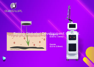 China 1064 Nm / 532nm Nd Yag Laser Tattoo Removal Machine 800mj Single Pulse Energy supplier