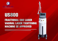 Globalipl New Portable CO2 Fractional Laser Machine For Acne Removal And Skin Tightening