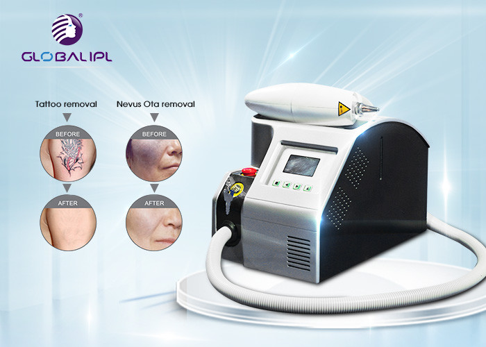 Beauty Salon Laser Tattoo Removal Machine , Q Switched Nd Yag Laser For Pigmentation