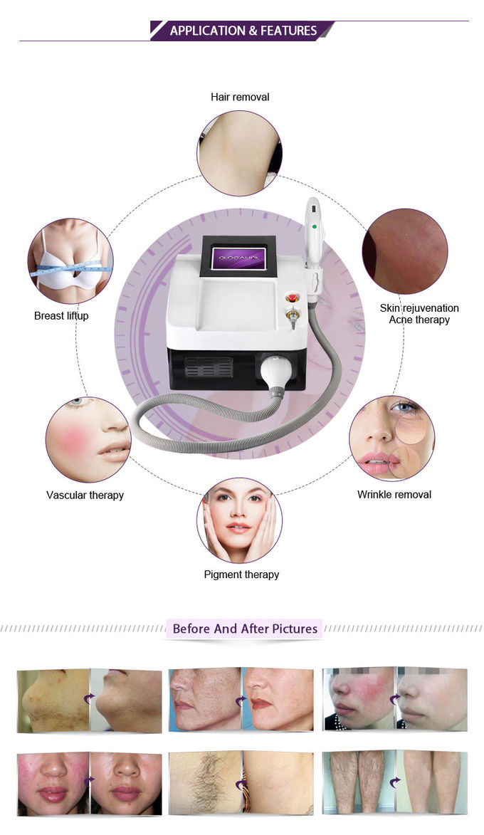 E Light IPL RF 3 in 1 Multifunction Beauty Machine For Hair Removal CE