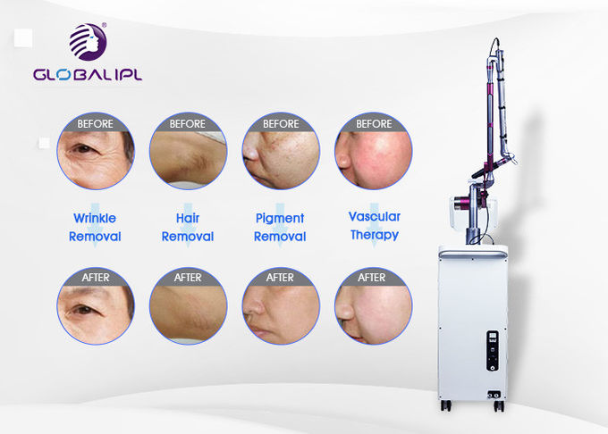 4 Handpieces Portable Laser Tattoo Removal Machine With 1 - 6hz Frequency 1